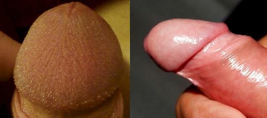 Penis: Beschnitten oder unbeschnitten - Was ist besser
